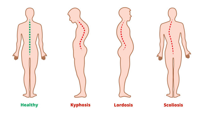 From left to right a back view of a healthy spine with a green vertical line showing the straight centre line spine. Kyphosis spine, side view, has a large rounded back at shoulder height. A lordosis, side view, has rounded shoulders and an arched back below and protruding buttock. A scoliosis spine has curvatures away from the centre vertical line as in the healthy spine.